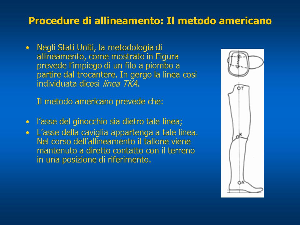 Procedure di allineamento: Il metodo americano