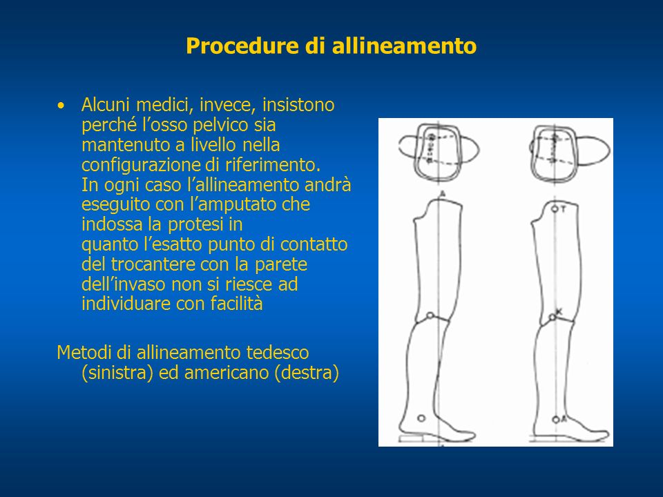 Procedure di allineamento