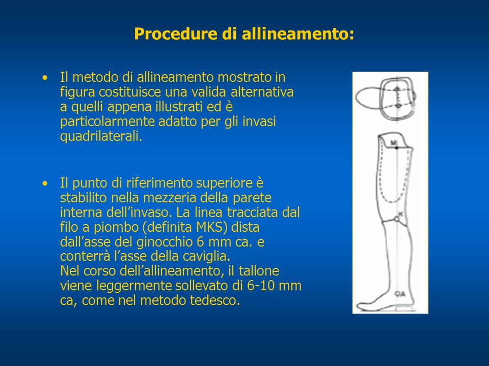 Procedure di allineamento: