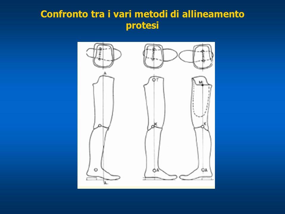 Confronto tra i vari metodi di allineamento protesi
