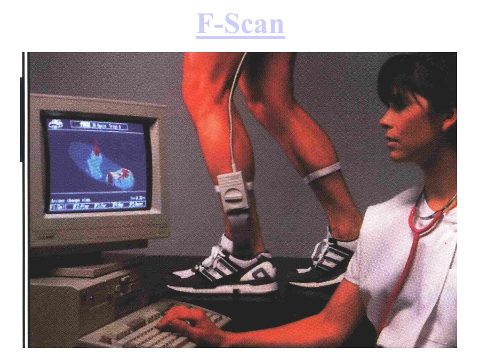 F-Scan