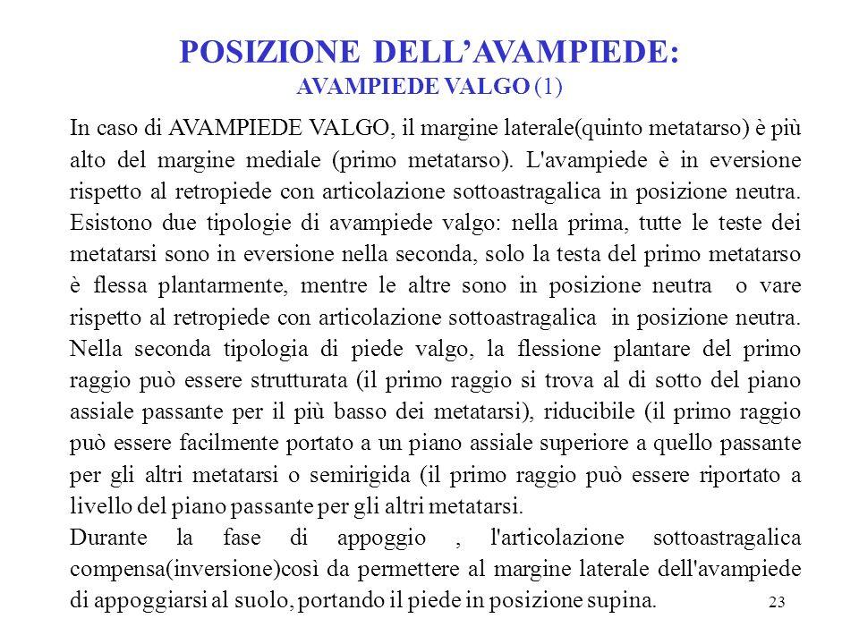 POSIZIONE DELL'AVAMPIEDE: AVAMPIEDE VALGO (1)
