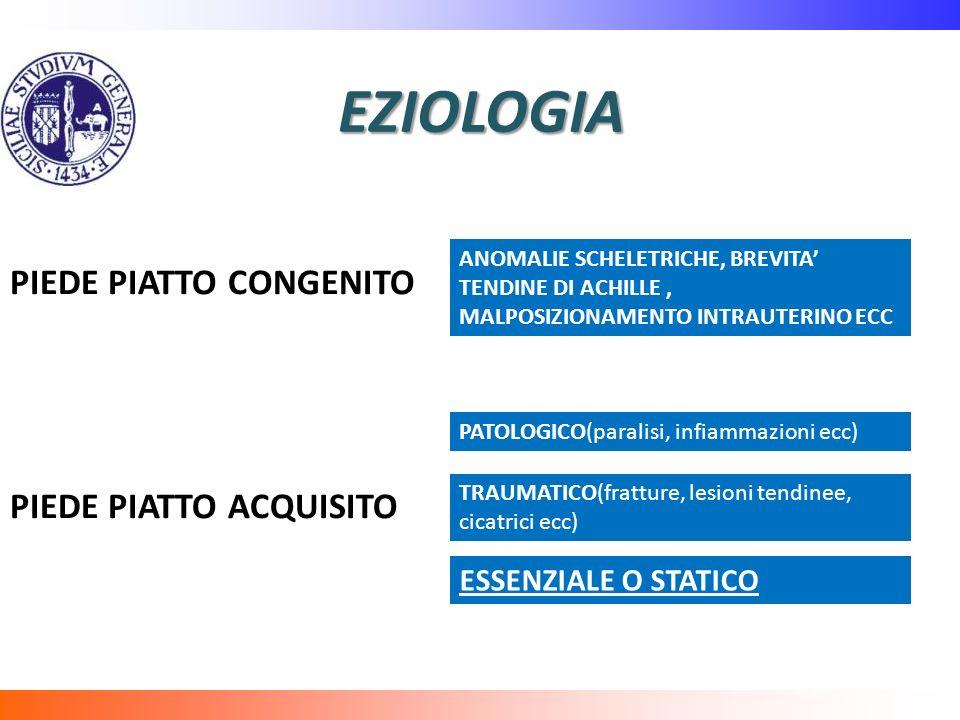 EZIOLOGIA PIEDE PIATTO CONGENITO PIEDE PIATTO ACQUISITO