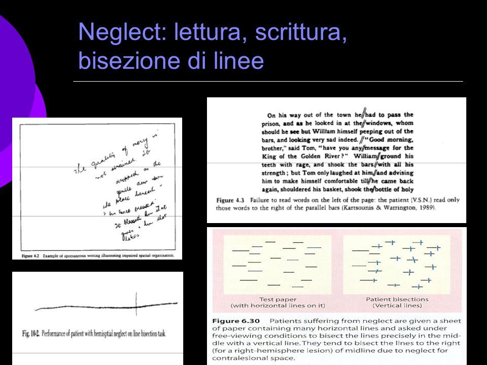 Neglect: lettura, scrittura, bisezione di linee