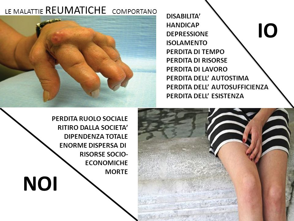 IO NOI LE MALATTIE REUMATICHE COMPORTANO DISABILITA' HANDICAP