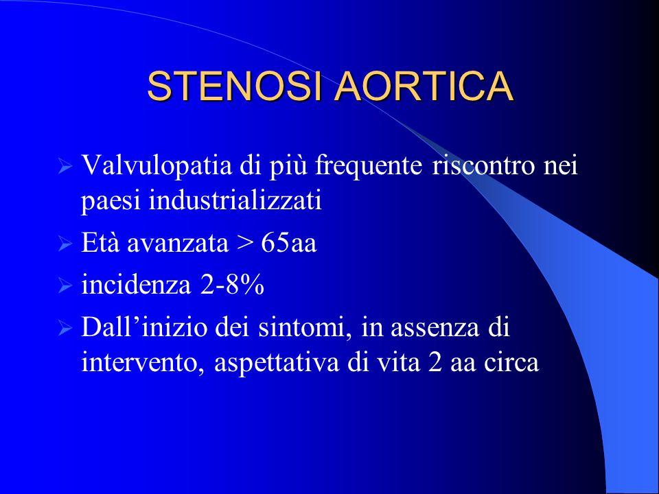 STENOSI AORTICA Valvulopatia di più frequente riscontro nei paesi industrializzati. Età avanzata > 65aa.
