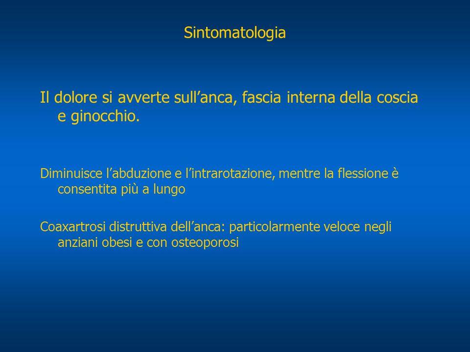 Sintomatologia Il dolore si avverte sull'anca, fascia interna della coscia e ginocchio.