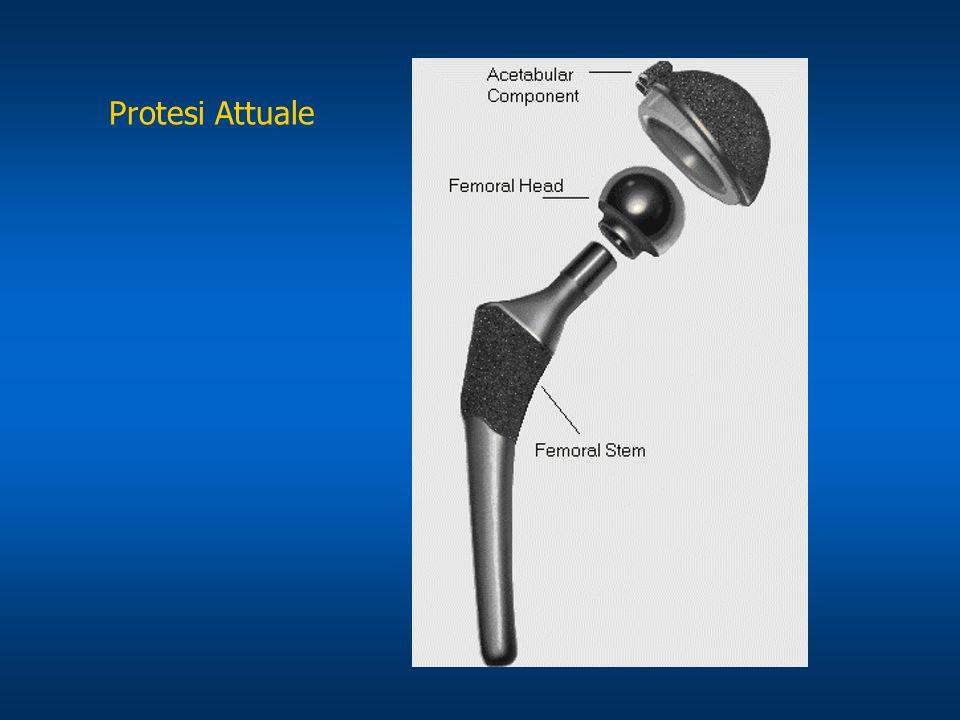 Protesi Attuale