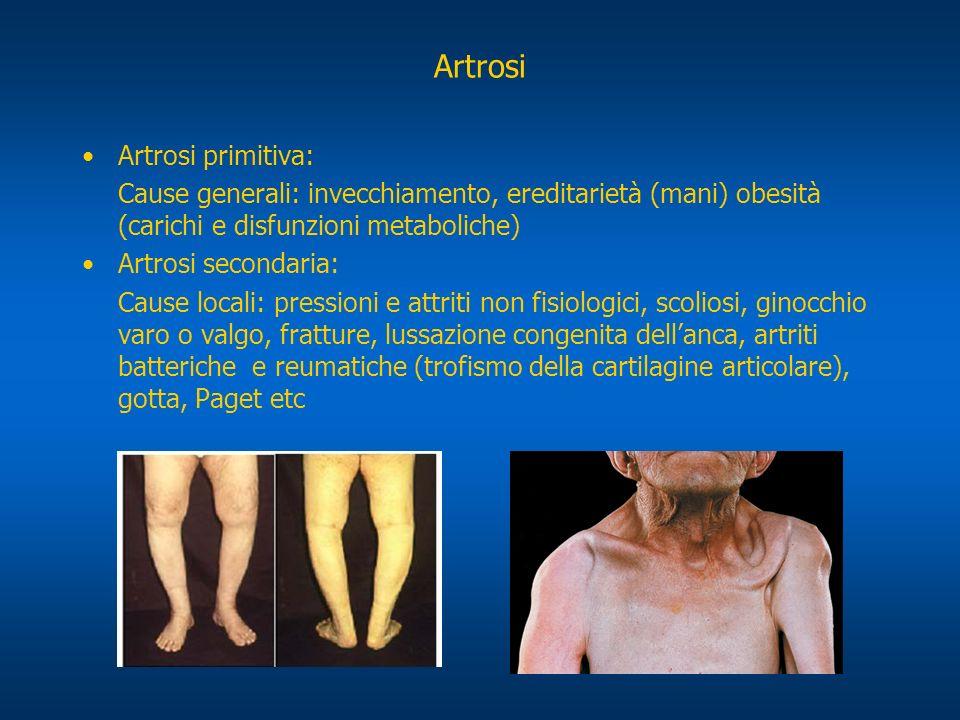 Artrosi Artrosi primitiva: