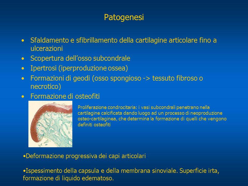 Patogenesi Sfaldamento e sfibrillamento della cartilagine articolare fino a ulcerazioni. Scopertura dell'osso subcondrale.