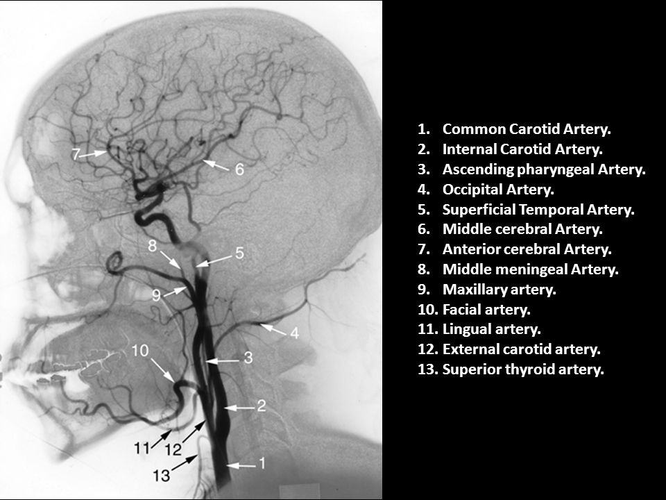 Common Carotid Artery. Internal Carotid Artery. Ascending pharyngeal Artery. Occipital Artery. Superficial Temporal Artery.