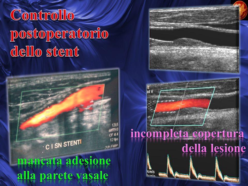 Controllo postoperatorio dello stent incompleta copertura