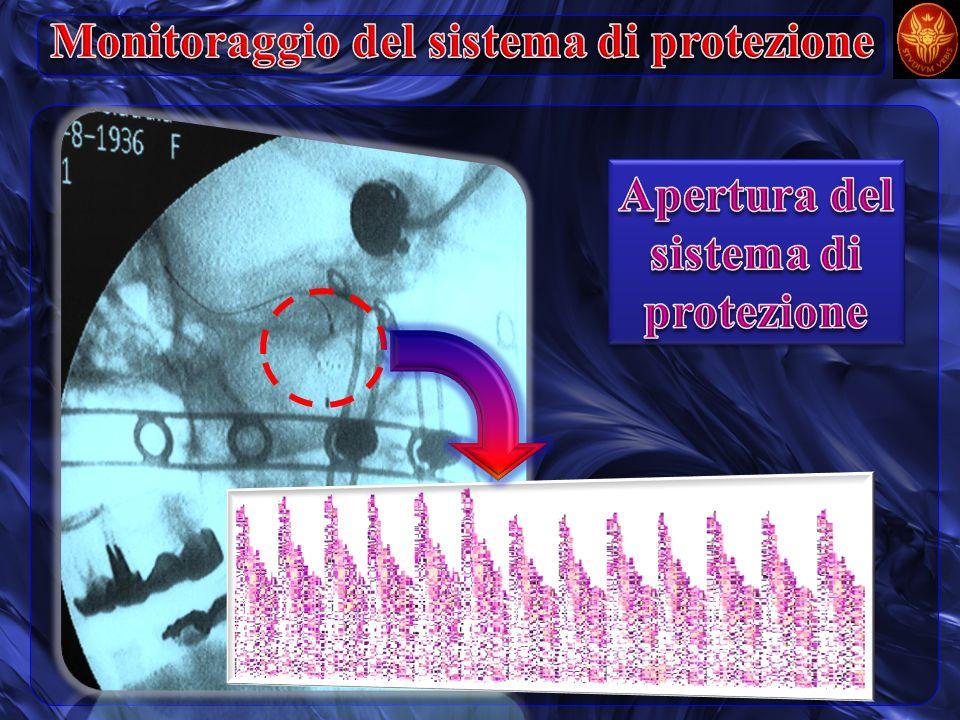 Monitoraggio del sistema di protezione
