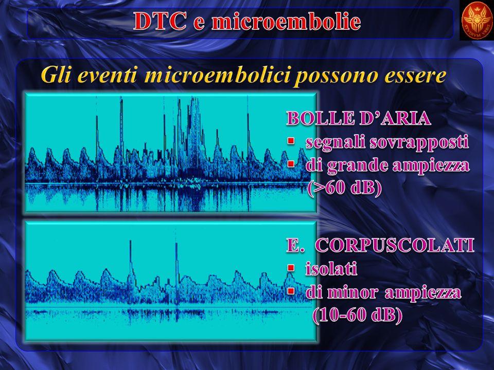 Gli eventi microembolici possono essere