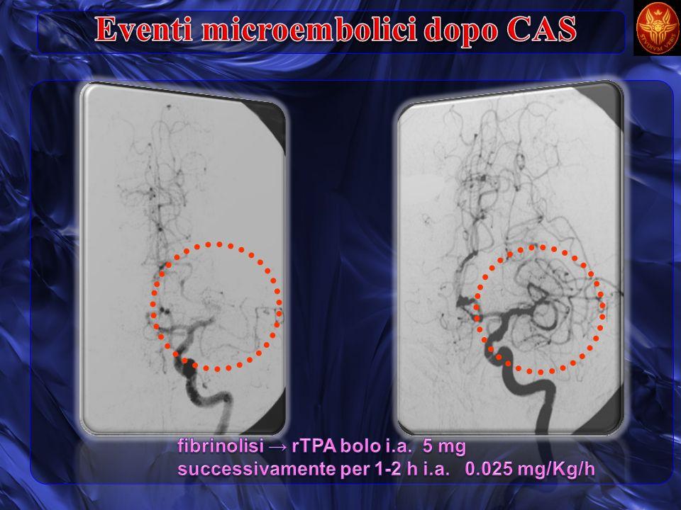 Eventi microembolici dopo CAS