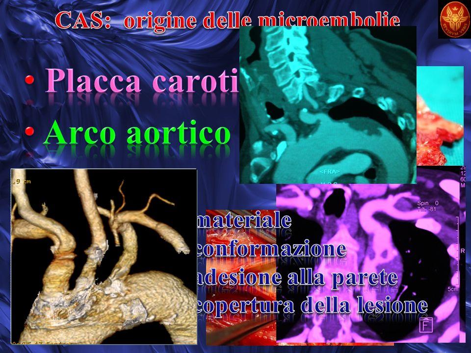 CAS: origine delle microembolie