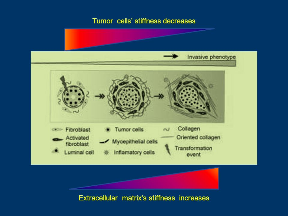 Tumor cells' stiffness decreases