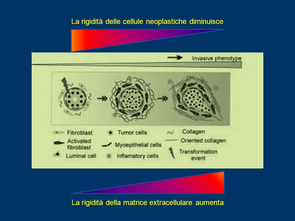 La rigidità delle cellule neoplastiche diminuisce