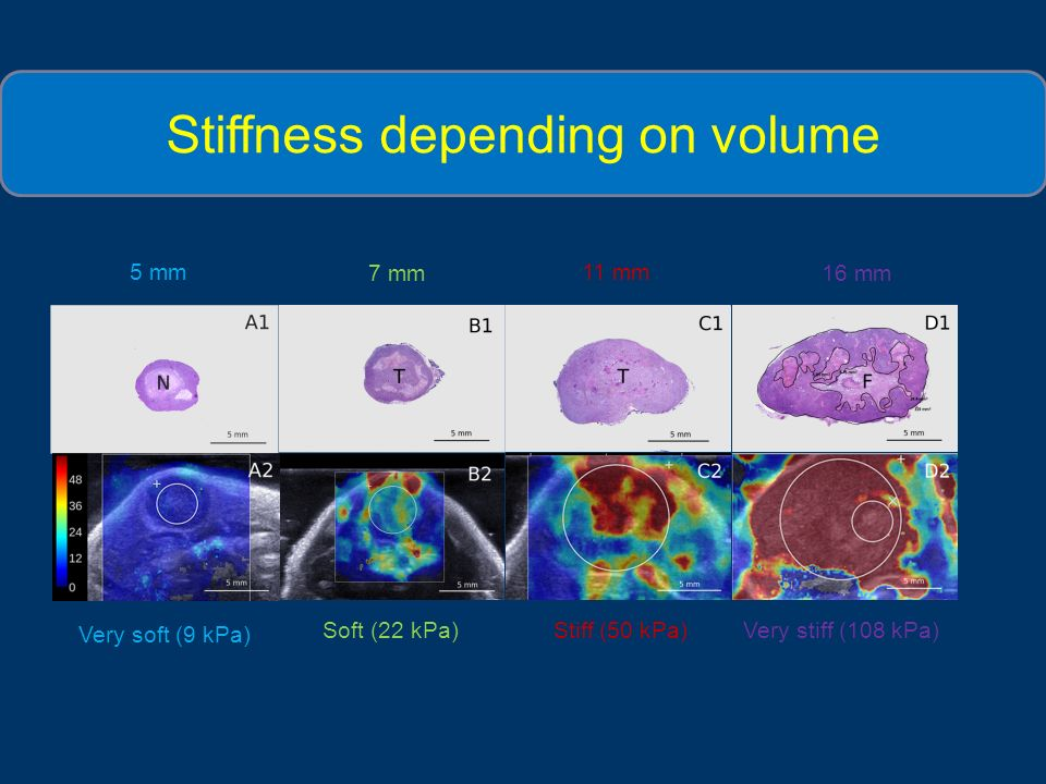Stiffness depending on volume