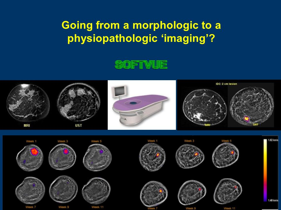 Going from a morphologic to a physiopathologic 'imaging'