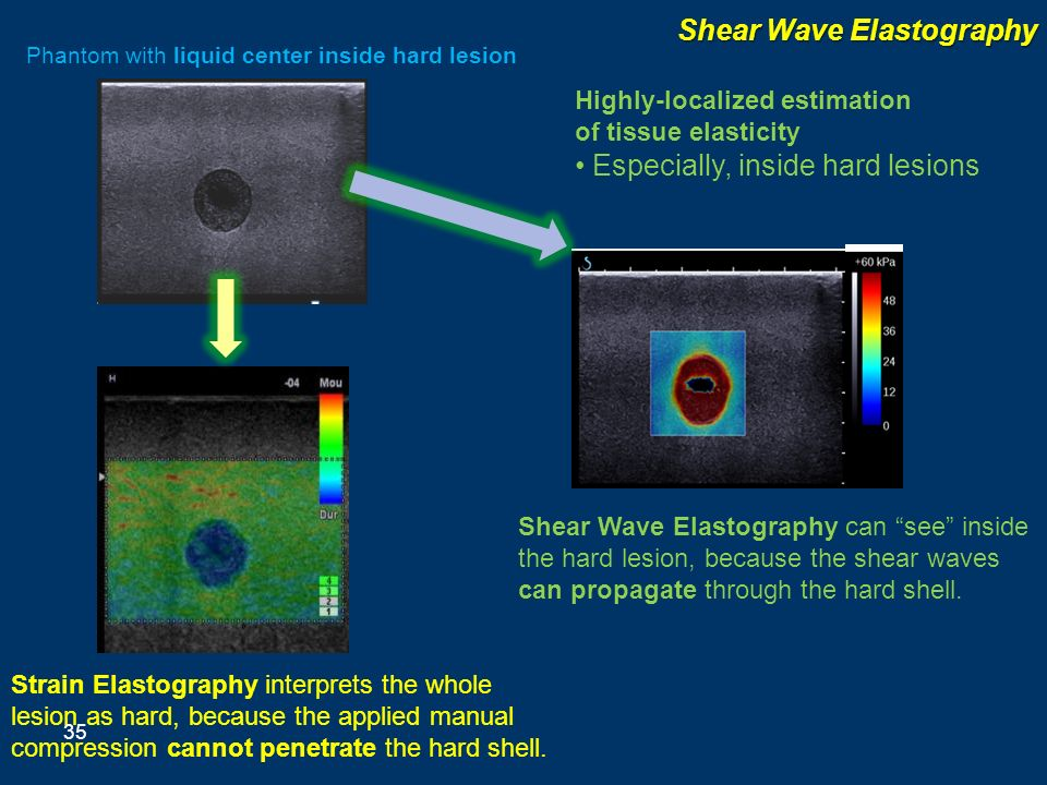 Shear Wave Elastography