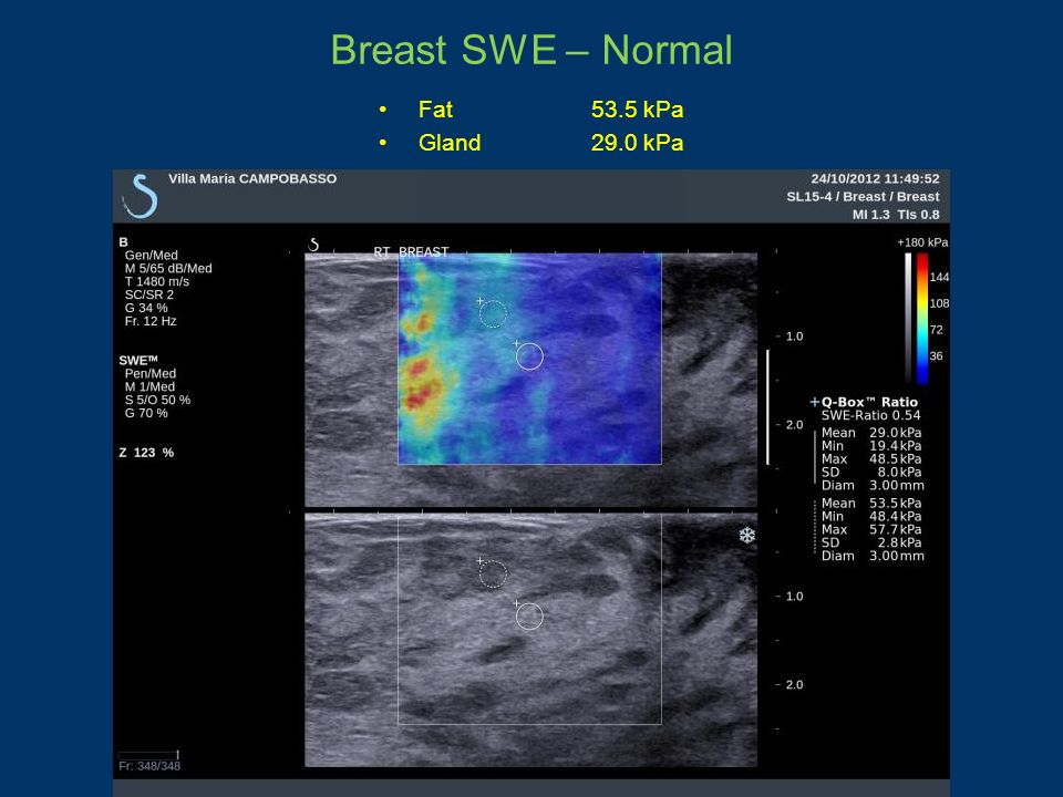 Breast SWE – Normal Fat 53.5 kPa Gland 29.0 kPa