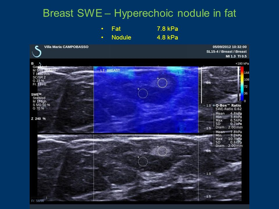 Breast SWE – Hyperechoic nodule in fat