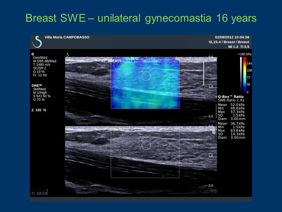 Breast SWE – unilateral gynecomastia 16 years