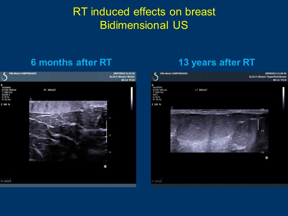 RT induced effects on breast Bidimensional US