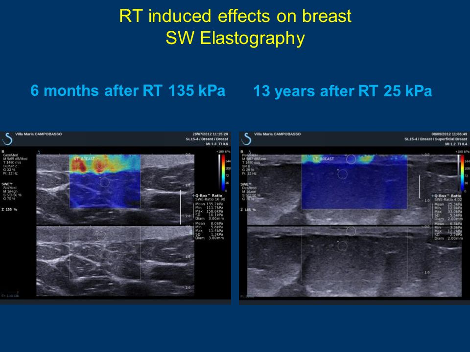 RT induced effects on breast SW Elastography