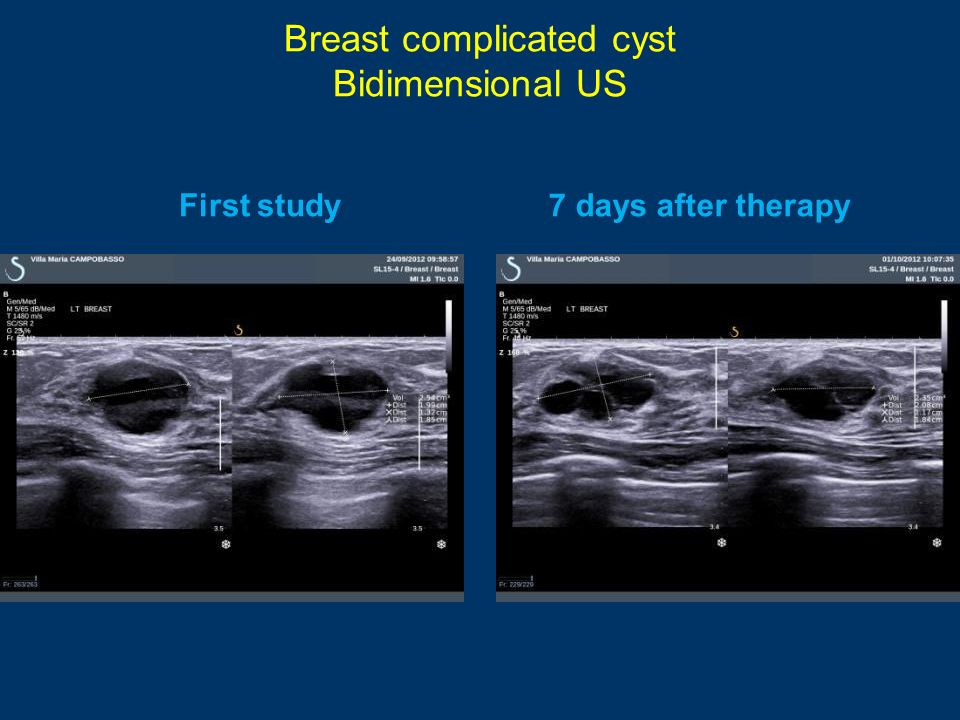 Breast complicated cyst Bidimensional US