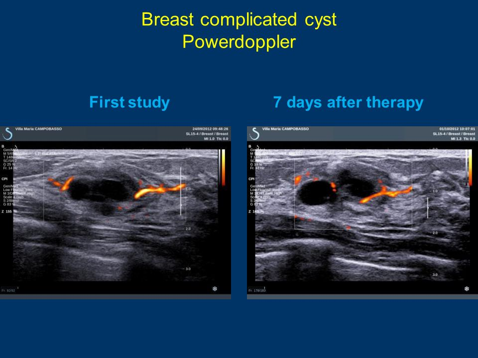 Breast complicated cyst Powerdoppler