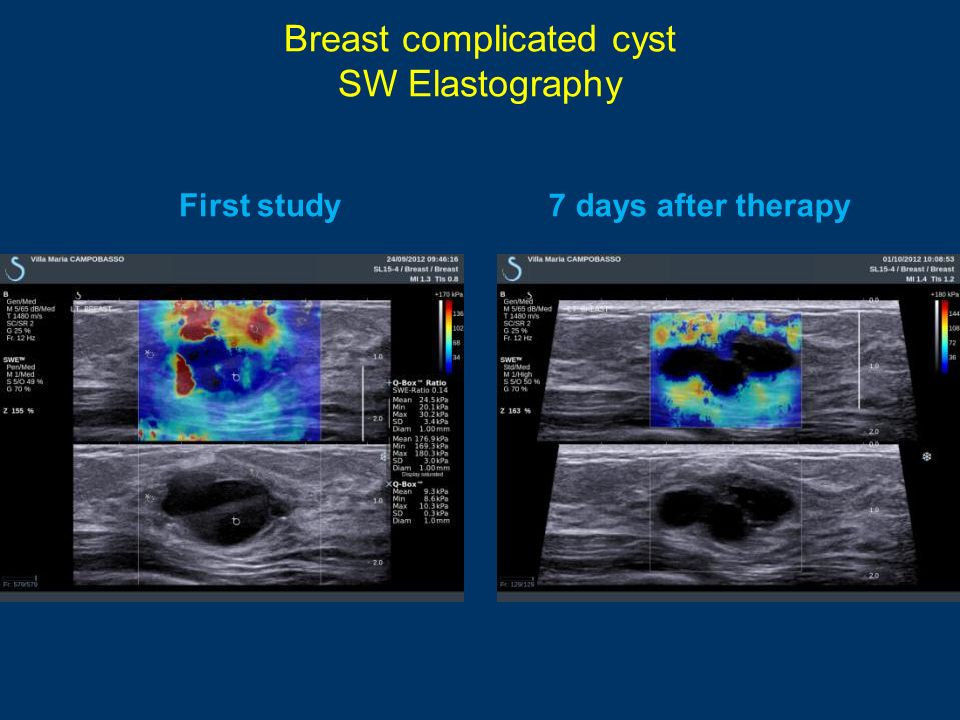 Breast complicated cyst SW Elastography