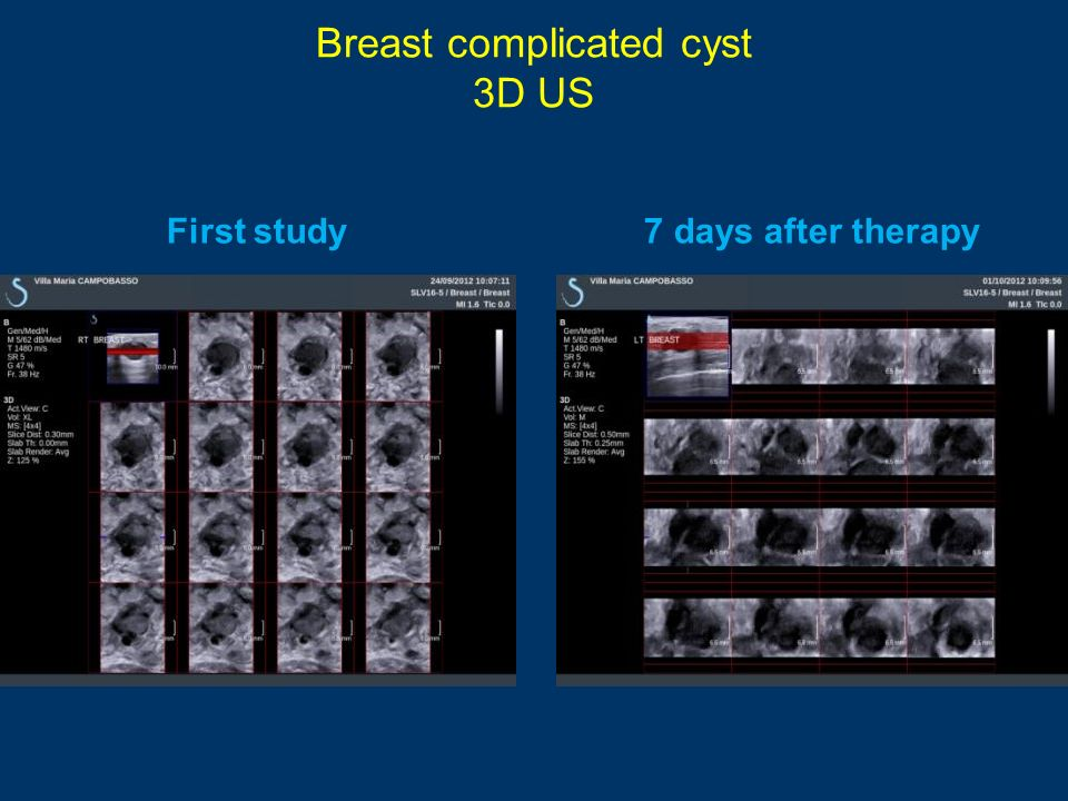 Breast complicated cyst 3D US