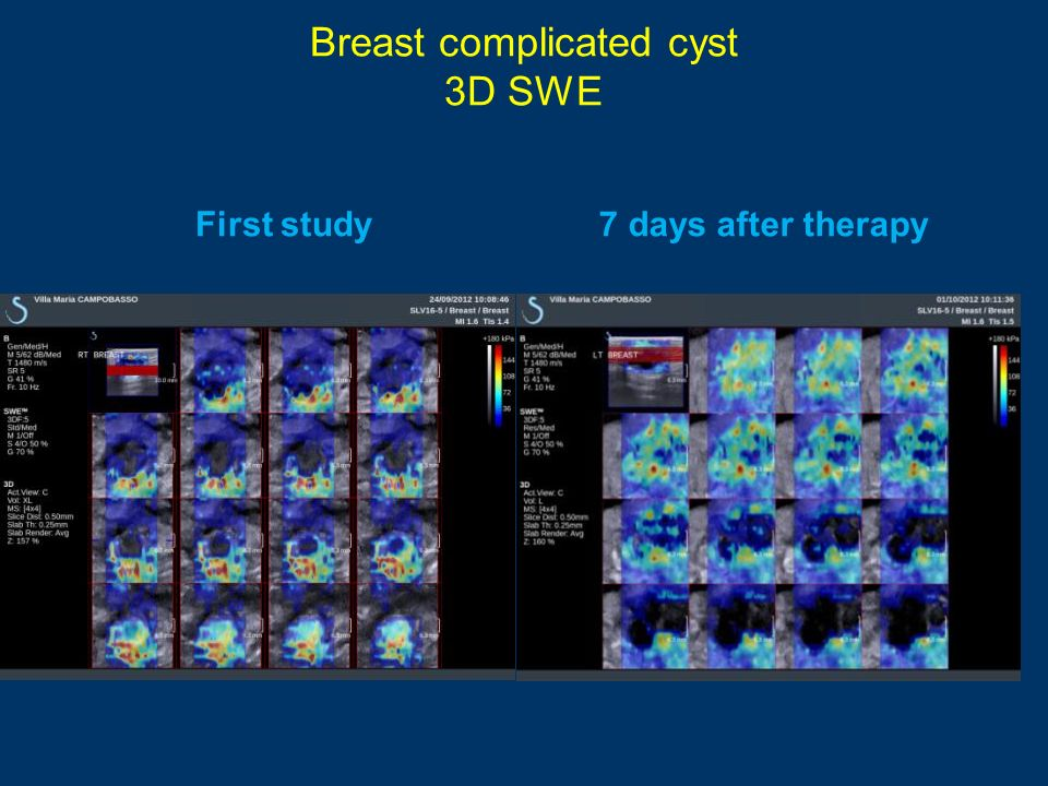 Breast complicated cyst 3D SWE