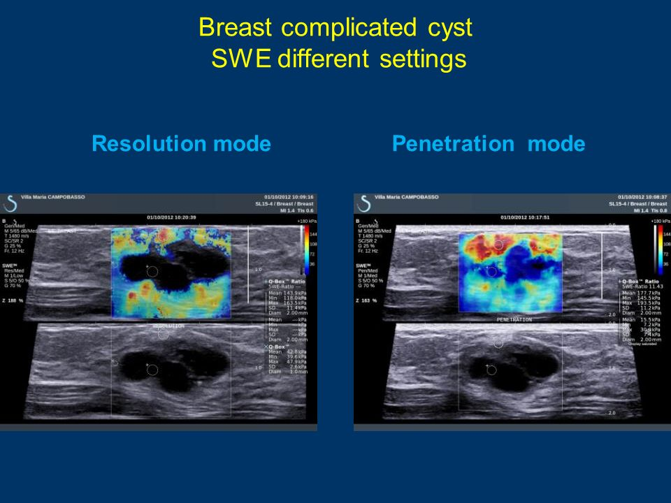 Breast complicated cyst SWE different settings