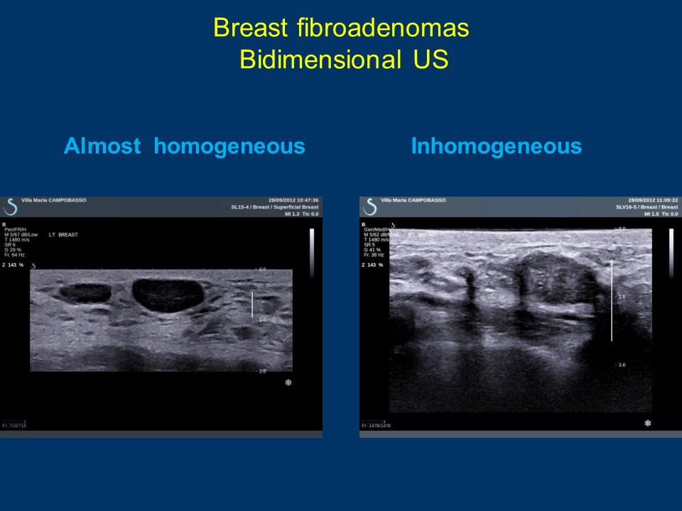 Breast fibroadenomas Bidimensional US