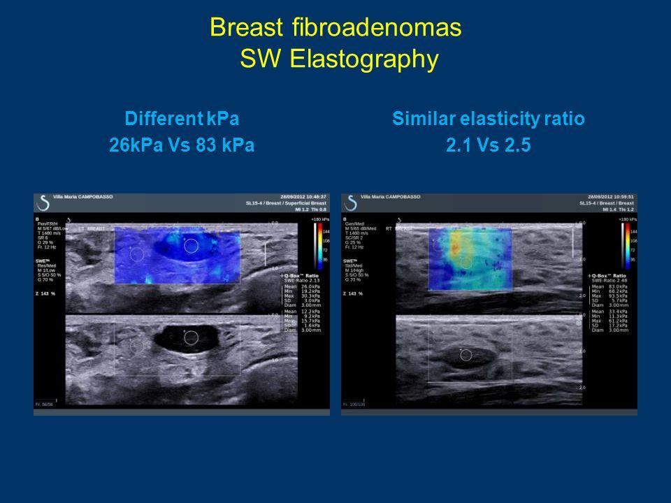Breast fibroadenomas SW Elastography