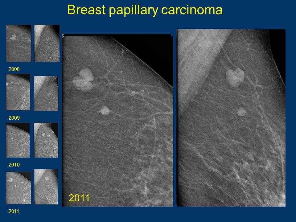 Breast papillary carcinoma