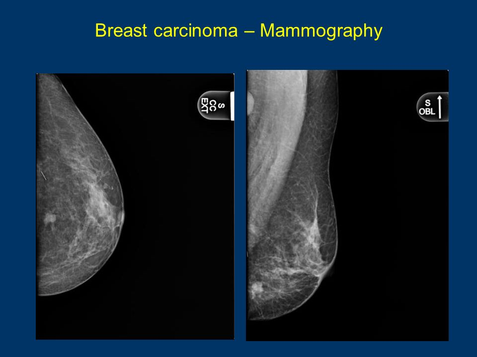 Breast carcinoma – Mammography