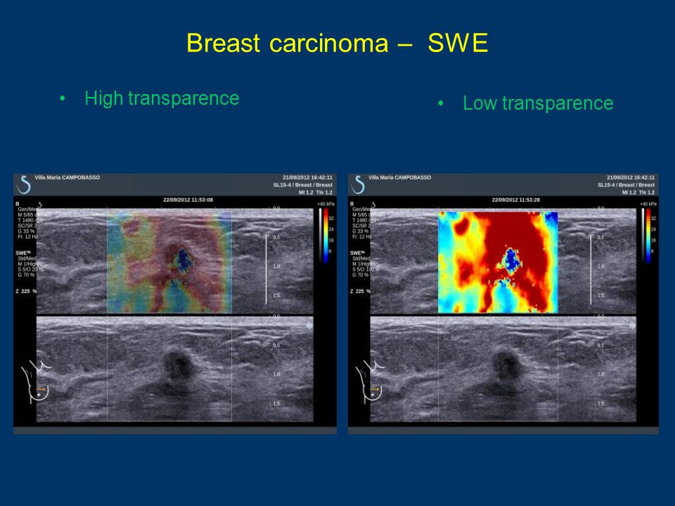 Breast carcinoma – SWE High transparence Low transparence
