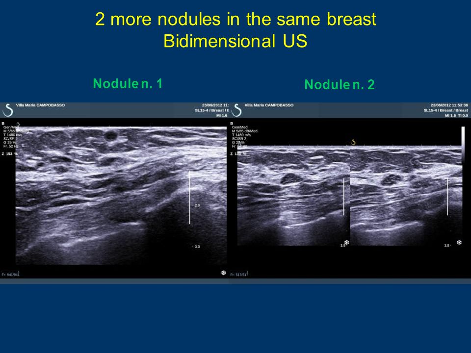 2 more nodules in the same breast Bidimensional US