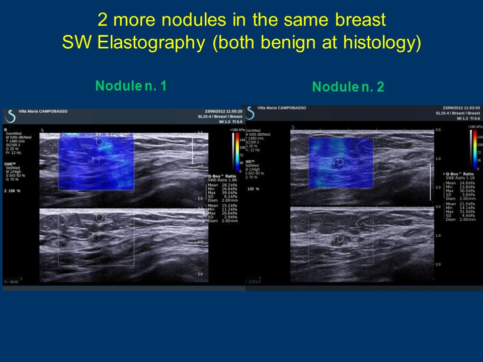 2 more nodules in the same breast SW Elastography (both benign at histology)