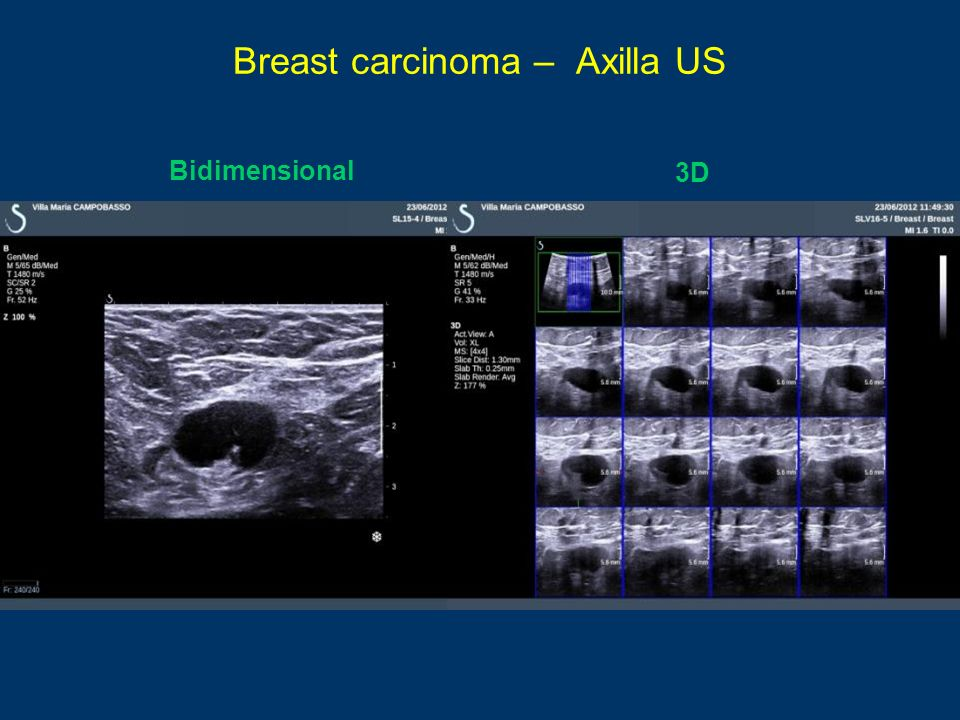 Breast carcinoma – Axilla US