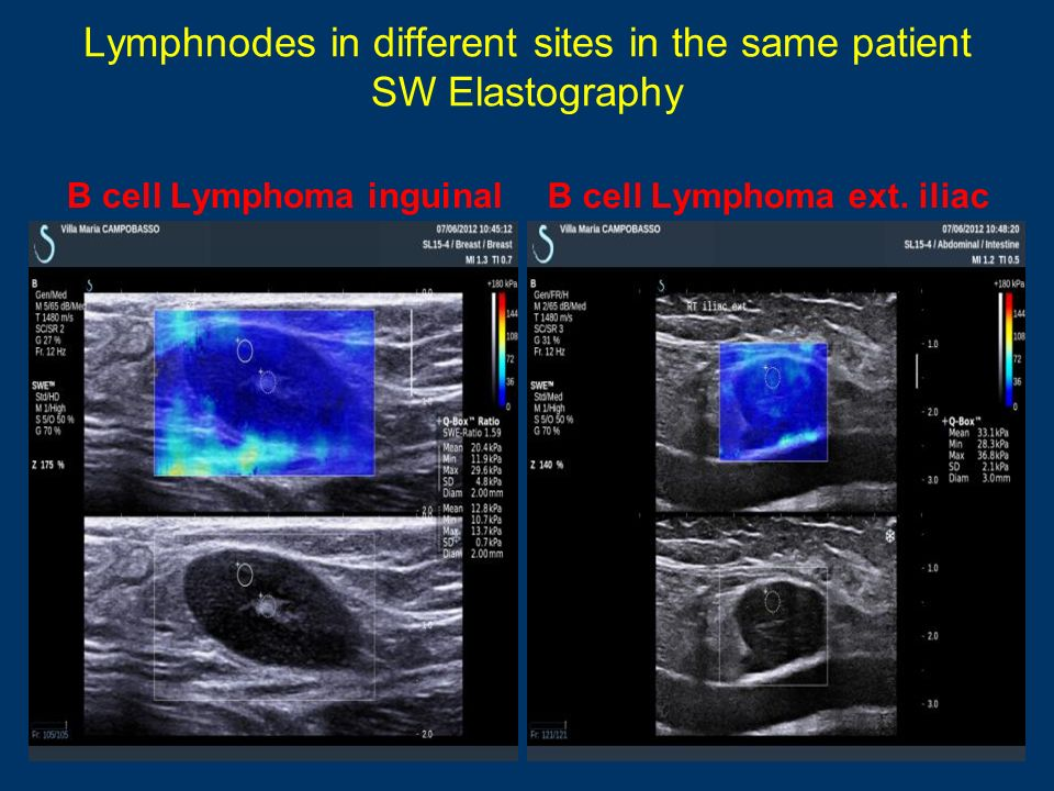 Lymphnodes in different sites in the same patient SW Elastography