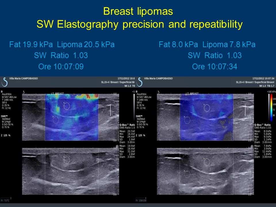 Breast lipomas SW Elastography precision and repeatibility