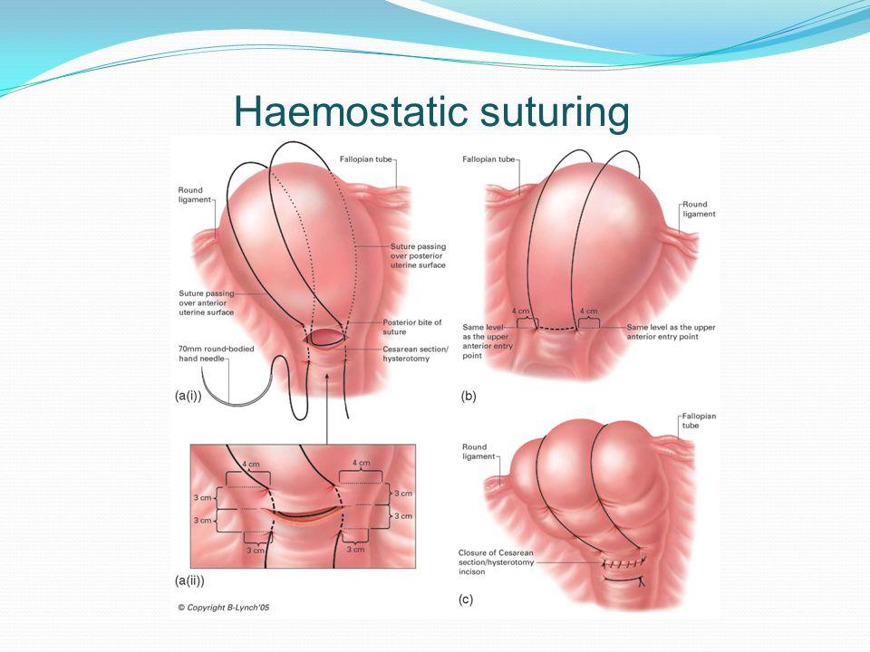 Haemostatic suturing