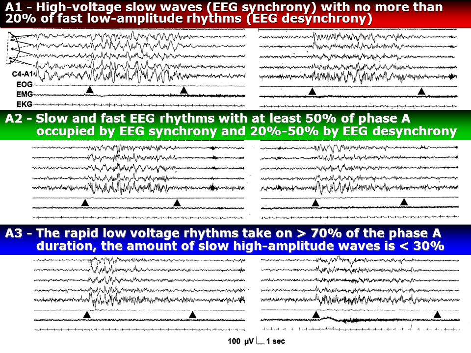 A1 - High‑voltage slow waves (EEG synchrony) with no more than 20% of fast low‑amplitude rhythms (EEG desynchrony)