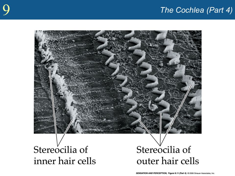 The Cochlea (Part 4)