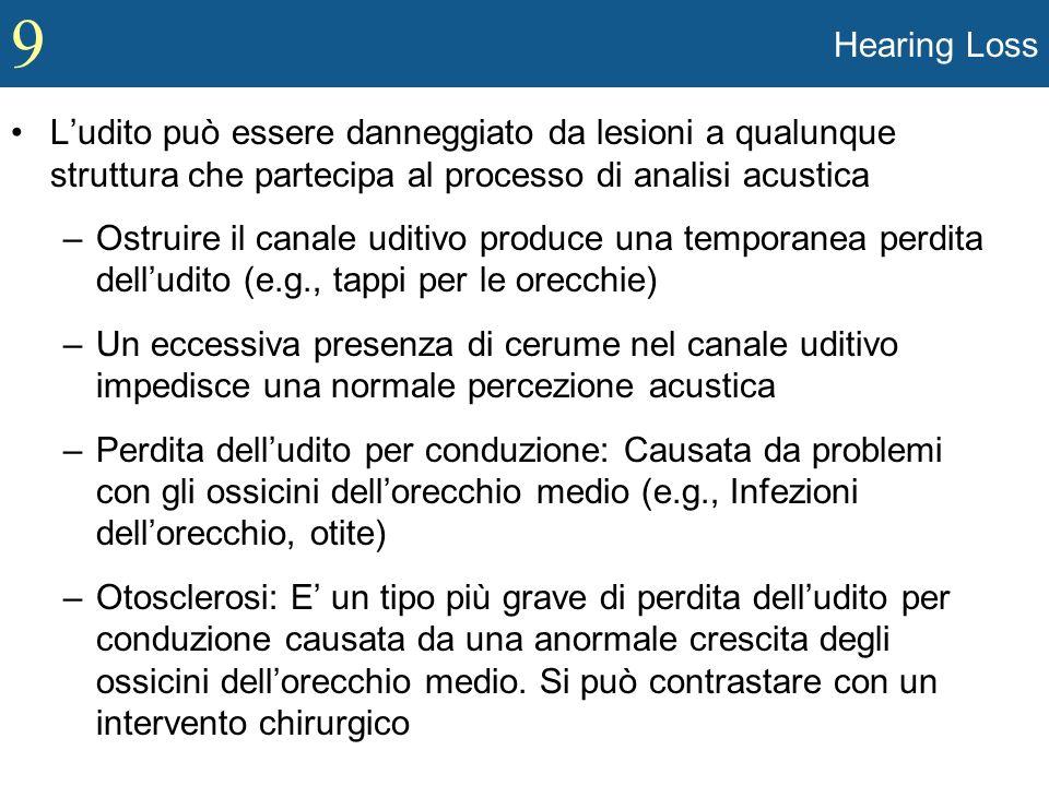 Hearing Loss L'udito può essere danneggiato da lesioni a qualunque struttura che partecipa al processo di analisi acustica.